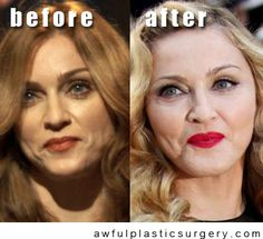 Awful Plastic Surgery. Funny stuff!