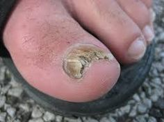 My ship has come in  toe fungus bottle