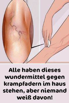 Everyone has this miracle cure for varicose veins in the house, but nobody knows about it . - Everyone has this miracle cure for varicose veins in the house, but nobody knows about it! Home Remedy For Headache, Headache Remedies, Varicose Vein Remedy, Varicose Veins, Inner Leg Workout, Calendula Benefits, Skin Tag, Facial Hair, Teeth Whitening