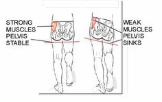 correcting knee pain by strengthening your glutes