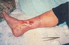 Treatment of venous ulcers using Amaranth oil