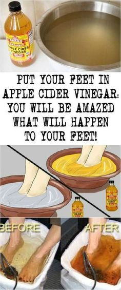 PUT YOUR FEET IN APPLE CIDER VINEGAR: YOU WILL BE AMAZED WHAT WILL HAPPEN TO YOUR FEET!