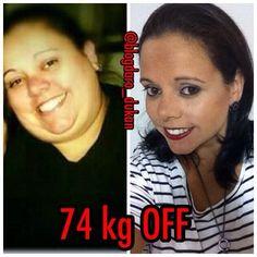 Snapchat blogdaro_dukan Convido vocês a conhecer a história da guerreira @blogdaro_dukan  Motivação e muita garra é que você encontra no Instagram da @blogdaro_dukan.  Ela sempre lutou contra a obesidade.  Chegou a 165kg.  Já eliminou 74kg em 2 anos. Eu sigo e recomendo @blogdaro_dukan #bichoeplanta30diasRo #bichoeplanta #vemserdivafitness #exgordosfamily #vidasaudavel #lowcarb #firmeeforte #desistirjamais #estilodevida #foco #forcadevontade #projetobabababy #projetomimis #alimentação…