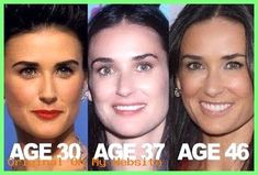 Demi Moore – has had some help from Botox, Fillers and probably Peels, Laser Skin Resurfacing, Laser Skin Tightening and IPL Photofacial to help keep her youthfulness over the years. Call Tacoma Laser Clinic today for a complimentary consultation Demi Moore, Botox Before And After, Rhinoplasty Before And After, Facial Fillers, Botox Fillers, Bio Oil Pregnancy, Laser Skin Tightening, Skin Resurfacing, Celebrity Plastic Surgery