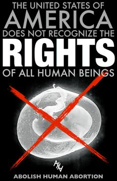 Abortion should not be allowed in the united states of america