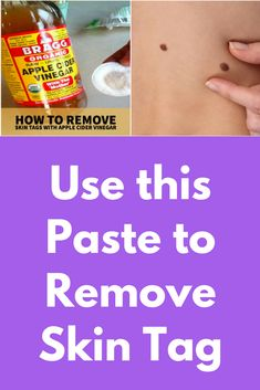 Use this Paste to Remove Skin Tag This home remedy will remove skin tag easily at home. These skin tags will be caused by so many problems, and with this remedy, you can instantly remove this with regular use. Ingredients you will need- 1 tablespoon of ap Skin Tag On Eyelid, Skin Tags On Face, Face Skin, Mole Removal, Skin Tag Removal, Remove Skin Tags Naturally, Skin Tags Home Remedies, Skin Moles, Baking Soda Uses