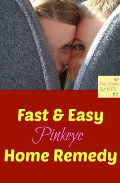 Fast And Easy Pinkeye Home Remedy