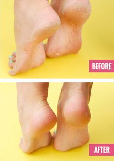 This Weird At-Home Treatment Is The Cure For Your Dry, Cracked Heels · One Good Thing by Jillee