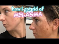 Dark Patches On Face, Dark Spots On Face, Pregnancy Workout, Fit Pregnancy, Sarah Fit, Revision Skincare, Henna Hair, Clean Face