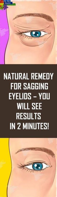 Natural Remedy for Sagging Eyelids – You Will See Results in 2 Minutes! Natural remedy for sagging eyelids – you will see results in 2 minutes! Health Tips For Women, Health Advice, Health And Beauty, Saggy Eyelids, Sagging Skin, Drooping Eyelids, Hooded Eyelids, Healthy Women, Healthy Tips