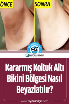 Koltuk Altı ve Bikini Bölgesi Nasıl Beyazlatılır? -Kararmış Koltuk Altı ve Bikini Bölgesi Nasıl Beyazlatılır? At Home Workout Plan, At Home Workouts, Beauty Care, Beauty Hacks, Belly Pooch Workout, Hair Sketch, Flu Remedies, Face Massage, Vicks Vaporub