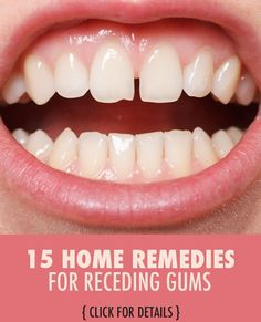 Did you know receding gums are the first sign of gum disease? When the gums recede, space is opened up and bacteria fill that void and wreak havoc on your dental health. While there a lot of reasons gums begin to recede, from poor dental health to aggressive brushing, there are a number of all natural ways to control the deterioration of your gums.