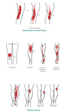trigger point referral pain pattern for the knee & lower leg