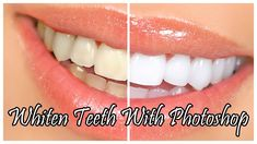 Photoshop CS5 Whiten Teeth Tutorial. Zoom in your picture and put on the magic wond tool, and ypu hold shift and make the selections around the teeth. Then you want to select, modify then feather. Then put up to 5 pixels, then you want to go to hue saturation and play around with it to your needs.