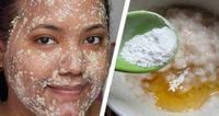 NO more dark spots, acne scars on your face. This mask removes them all in just 30 minutes Oats Mask Against Dark spots/Acne scars Ingredients: milk. of organic honey 2 tbsp. of rolled Dark Spots On Face, Brown Spots, Face Scrub Homemade, Homemade Mask, Skin Spots, Facial Masks, Facial Hair, Acne Facial, Acne Scars