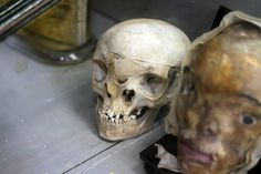 Skull of a woman with a condition called monocephalus diprosopus.  This is a form of conjoined twinning characterized by a single head and two faces or a spectrum of duplication of the craniofacial structures.  From the Museum of Anatomy in Montpellier, France.