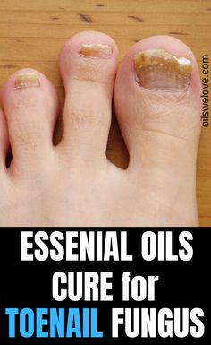 Accurate lab tests have confirmed essential oils promote nails' health and help with healing nail and toenail fungus #essentialoil #fungus #ToenailFungusVinegar Toenail Fungus Vinegar, Toenail Fungus Cure, Toe Fungus, Essential Oil Toenail Fungus, Fungus Toenails, Black Toe Nails, Easential Oils, Nail Oil, Fungal Nail