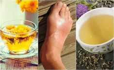 The 5 best infusions to lower uric acid Alcoholic Drinks, Beverages, Sugar Intake, Uric Acid, Gout, Natural Treatments, Health Problems, Get In Shape, Stretch Routine