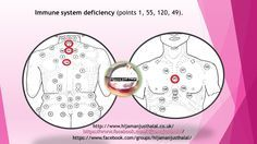 Immune system deficiency front and back Hijama points Cupping Points, Hijama Cupping, Cupping Therapy, Alternative Therapies, Alternative Treatments, Alternative Medicine, Hijama Points, Reiki, Trigger Point Therapy