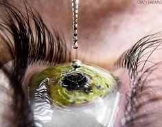 Los típicos ojos rojos al salir de la piscina son una inflamación de la membrana conjuntiva. La irritación producto del cloro en las piscinas es más frecuente en niños que nadan bajo el agua con los ojos abiertos, o aquellas personas que teniendo piel sensible, no protegen sus ojos con gafas de natación de buena calidad.