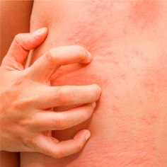 Insomnia Remedies Hives Treatment: 9 Natural Home Remedies - Urticaria, or hives, are red bumps that suddenly appear on your skin. I hope that you won't experience hives, but if you do, try a natural hives treatment. Natural Remedies For Hives, Home Remedies For Hives, Hives Remedies, Rashes Remedies, Insomnia Remedies, Holistic Remedies, Natural Cures, Natural Treatments, Allergies
