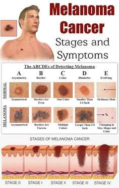 #HealthTipsForHealthyLife Health And Wellness, Health Fitness, Medical Anatomy, Anatomy And Physiology, Medical Care, Healthy Tips, Natural Remedies, Pcos, Cancer
