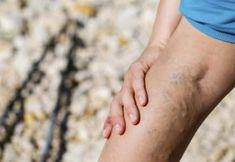 Arteriyoskleroz / Ateroskleroz Belirtileri ve Nedenleri - - Damar Sertliği Nedir? Arteriyoskleroz / Ateroskleroz Belirtileri ve Nedenleri Spor, egzersiz Was ist Gefäßsteifheit? Back Acne Treatment, The Body Shop, Sephora, Types Of Acne, Acne Breakout, Varicose Veins, Vegan, Good Skin, Beauty Tutorials