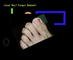 Laser nail fungus removal - Nail Fungus Remedy. You have nothing to lose! Visit Site Now