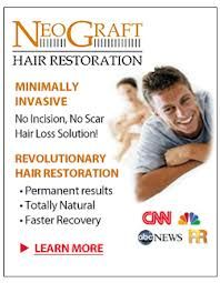 NeoGraft- The global leader in hair restoration technologies!  Dr. B is the best in the Midwest!  #AccentsMedSpa #MichiganHairRestoration #DrB #Berkowitz #FUE #hair #restore #men #women #solution