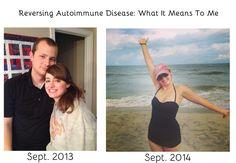 reversing autoimmune disease