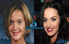Katy Perry Nose Job Before and After | http://plasticsurgeryfact.com/katy-perry-plastic-surgery-before-and-after-photos/