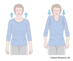 Exercises post- mastectomy and reconstruction