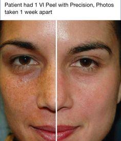 hydra bright facial peel