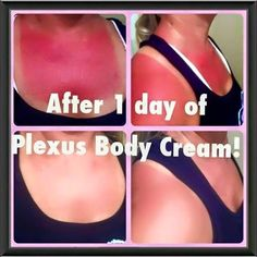 Plexus Body Cream is AMAZING! Helps with so many skin issues with spirulina algae and activated charcoal #plexusrocks #plexusbodycream #sunburn #spirulina #charcoal