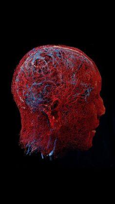 Blood vessels in the brain