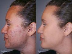 Remedios caseros para las cicatrices del acné   Cuidar de tu belleza es facilisimo.com