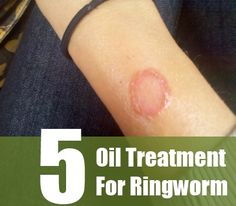 Search Home Remedy - http://www.searchhomeremedy.com/five-essential-oil-treatment-for-ringworm/