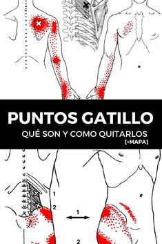 PUNTOS GATILLO: Qué son y como quitarlos [+MAPA] 16 Qi Gong, Massage, Body Stretches, After Running, Gua Sha, Traditional Chinese Medicine, Trigger Points, Plantar Fasciitis, Reflexology