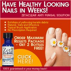The Top 5 natural ways to get rid of toe nail fungus | Zetaclear UK Official - Stop Toe Nail Fungus