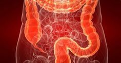 colon cleanse remedies Colitis is inflammation of the colon, also known as the large intestine. Continue reading for natural remedies and treatments for colitis. Inflammation Of The Colon, Essential Oils For Cancer, Herbal Colon Cleanse, Colon Detox, Colon Irritable, Small Intestine Bacterial Overgrowth, Constipation Remedies, Colon Cleansers, Ulcerative Colitis