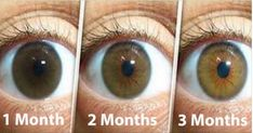 Natural Remedy For Cleaning Your Eyes and Improving Vision in Only 3 Months: Here is What You Need to Do to Avoid Surgery! - mycleanmedicine