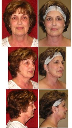 Exercise Methods For The Face And Cheeks - Get Rid Of Loose Facial Tissue And Sagging Jowls