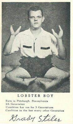 Lobster boy - lived in Gibsonton, FL