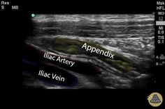 Ultrasound School, Pregnancy Ultrasound, Vascular Ultrasound, Ultrasound Sonography, Cardiac Sonography, Ultrasound Technician, Radiation Exposure, Emergency Department, Radiology