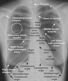#injury #trauma #surgery #whitecoat #finger #operation #picoftheday #instadaily #hospital #amputation #nurse #plasticsurgery  #surgeon #futuremd #medical #medschool #medstudent #chain #premed #bike #orthopedic #dental #dentist#anatomy#cardilogy#lovemed