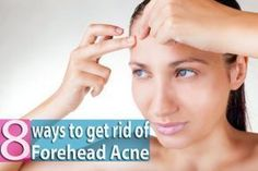 8 Ways to Get Rid of Forehead Acne Overnight