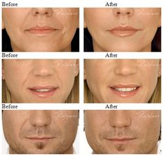 How to use instant face lift tape face lift tape instant face approved by the fda restylane is designed to match your skin smoothing wrinkles sculpting lips or shaping facial contours with its unique ability to solutioingenieria Choice Image