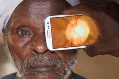 """A smartphone-based system for comprehensive eye examinations, ... it can bring eye care to even the remotest of settings."""