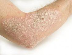 le psoriasis au naturel pour la toilette et le soin de la peau : sels de bain aromatiques huile de soin aromatisée