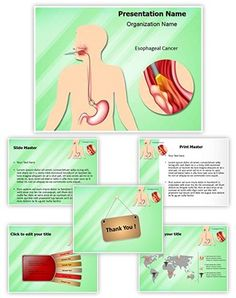 Esophageal Cancer PowerPoint Presentation Template is one of the best Medical PowerPoint templates by EditableTemplates.com. #EditableTemplates #Indigestion #Disease #Science #Procedure #Junction #Growth #Carcinoma #Difficulty #Anatomy #Digestion #Human #Dysphagia #Lower #Pain #Esophageal #Painful #Esophageal Cancer #Health #Stomach #Lumen #Gastroesophageal